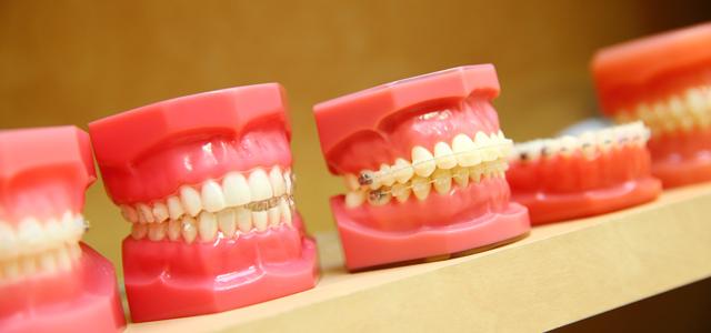 歯並びが悪い状態のリスク